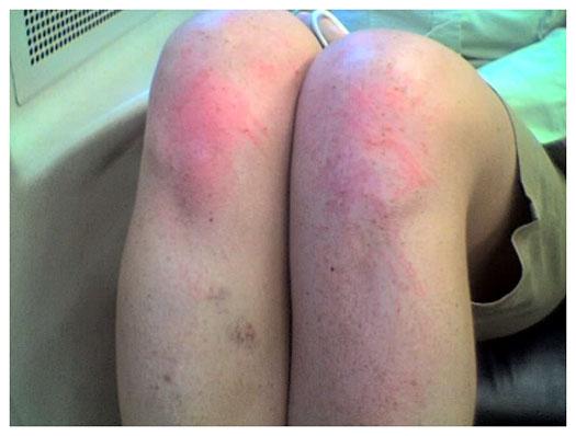 scraped-knees.jpg